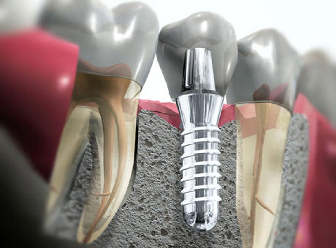 Хирургическая стоматология: удаление зубов