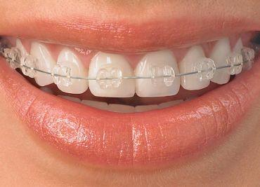 Реставрация проблемных зубов