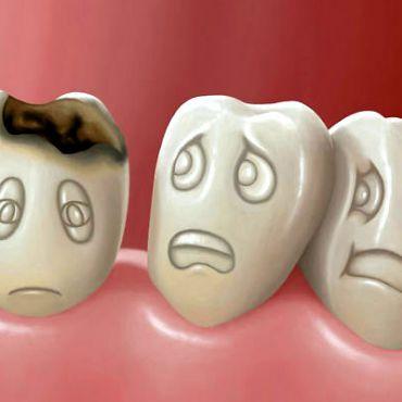 Почему болеют зубы: новые факты