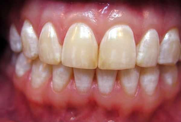 Флюороз зубов у взрослых и детей