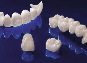 Современная стоматология: зубные коронки