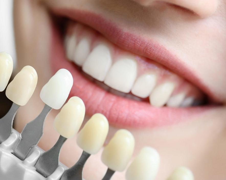 Минусы и плюсы установки люминиров на зубы