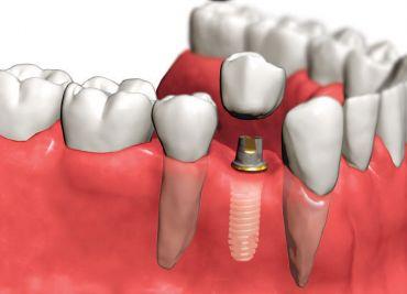 Имплантация зубов – современная методика восстановления и лечения зубов