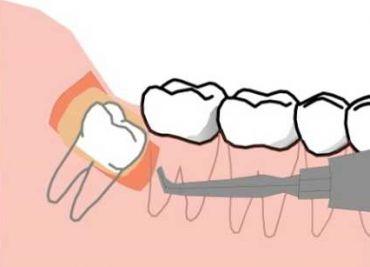 Лечение зуба мудрости — подробности и нюансы