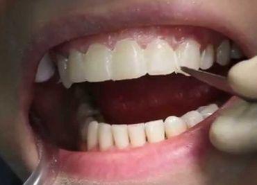 Наращивание и восстановление зубов — Ваша улыбка вновь красива!