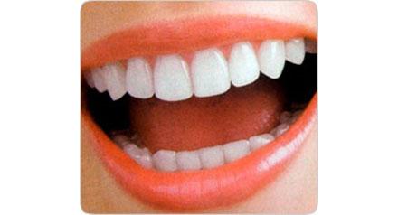 Все об имплантации зубов