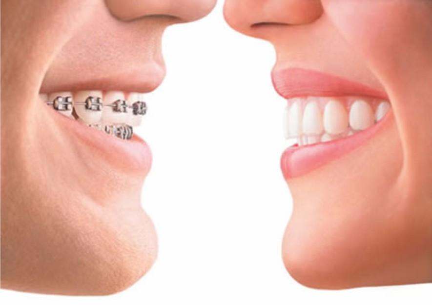 Ортодонтия для взрослых и детей