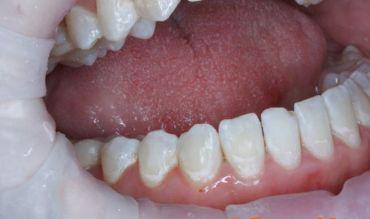 Лечение и профилактика зубного камня у детей